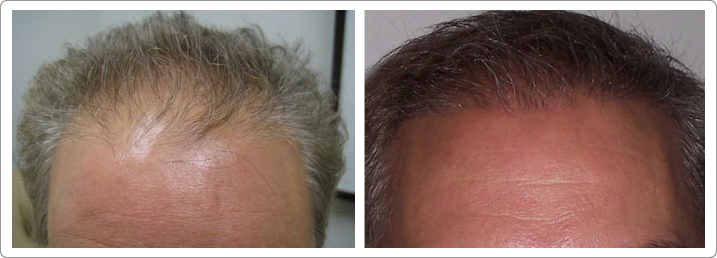 hair transplantations nyc, hair transplants nyc, neograft nyc