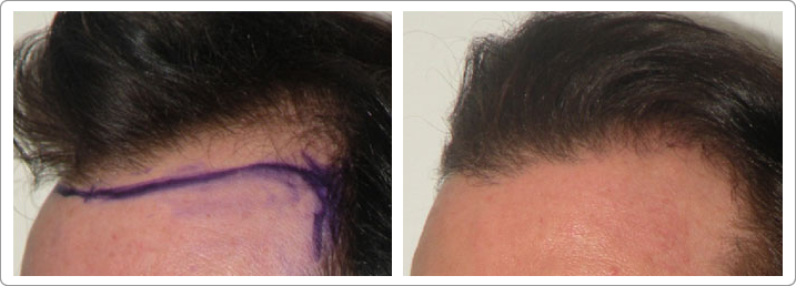hair restoration nyc, neograft nyc, hair transplantation nyc