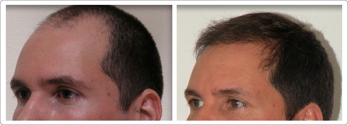 hair restoration nyc, hair transplantation nyc