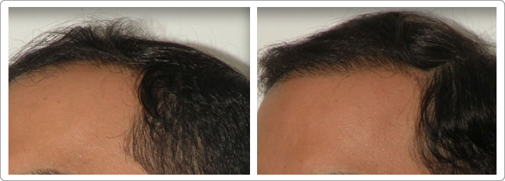 neograft nyc, hair restoration nyc, hair transplantation nyc