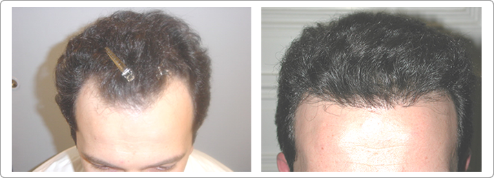 hair restoration nyc, hair transplantations nyc, neograft nyc